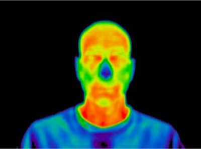 Temperature Screening & Facial Recognition Solution